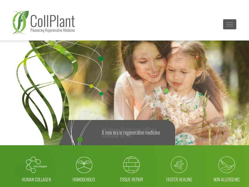 CollPlant Biotechnologies Ltd. Gains 29%